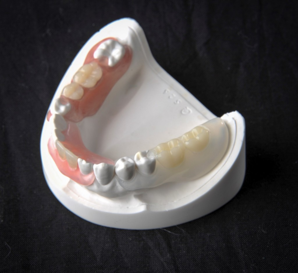 Valplast Flexible Dentures Carlow